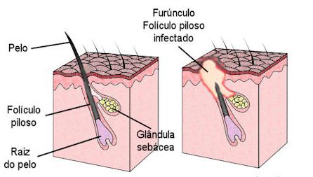 furunculo explicacao