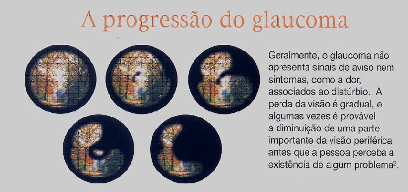 glaucoma sintomas