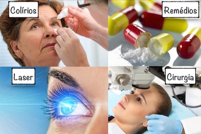 glaucoma tratamento