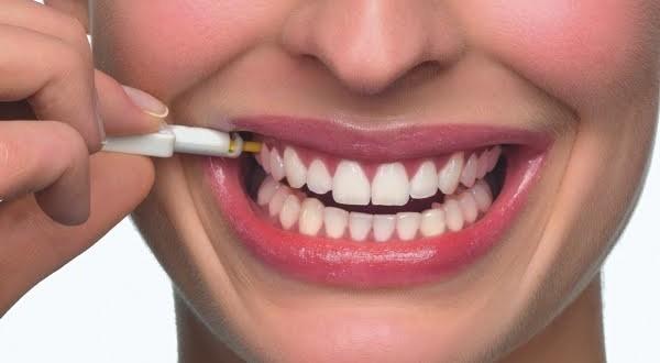 implante dentario gratuito
