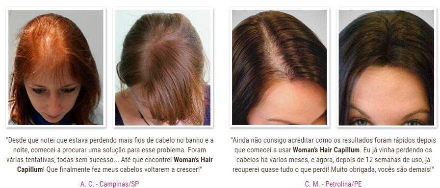 womans hair capillum depoimentos